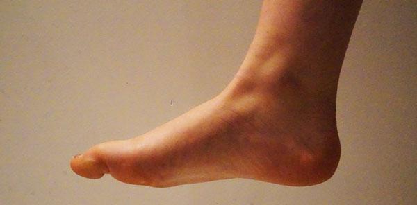douleurs de la cheville ostéopathe